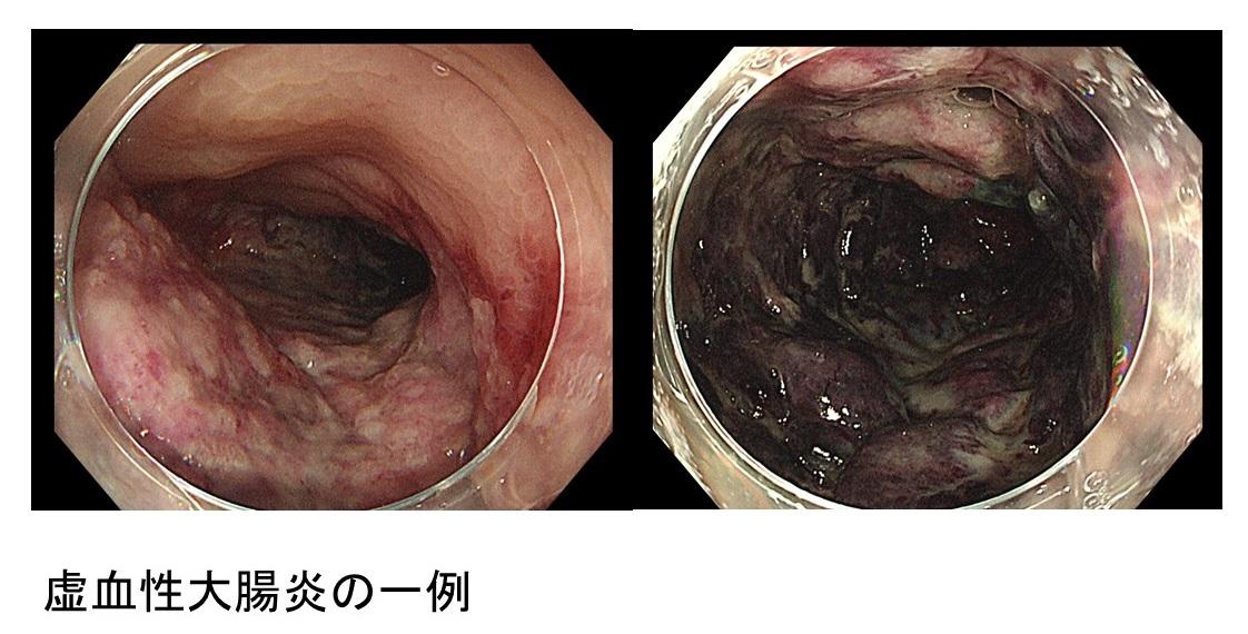 腸炎 虚 血性